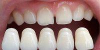 lente-de-contato-dental_16662_l